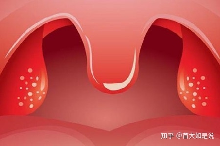 腺 炎 扁桃 急性