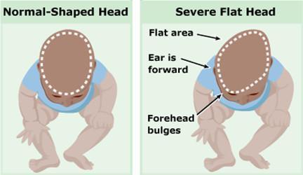 胎儿头偏小影响智力么
