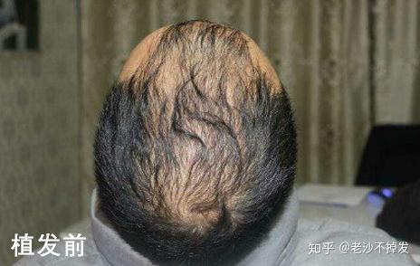 头上刀伤能植发吗