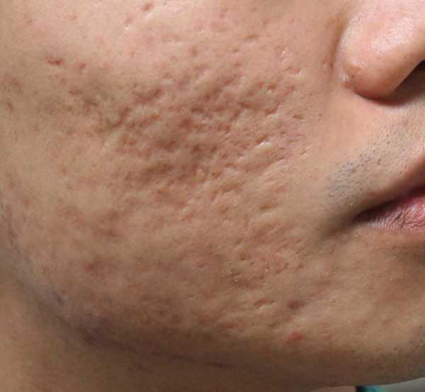 去痘_如何去除脸上的痘印、痘坑? - 知乎