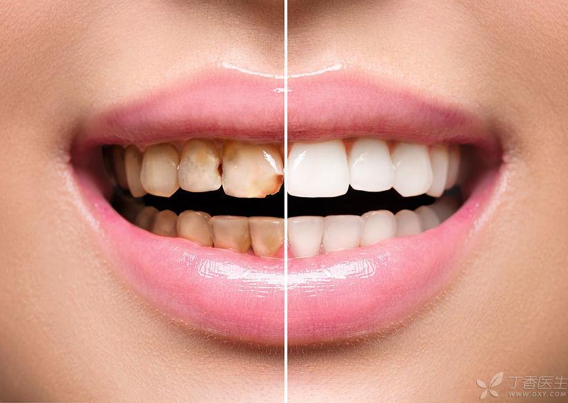 你的牙齿欠了多少债?