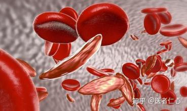 減少 食事 血小板 治療
