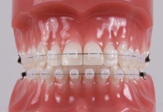 传统牙套和自锁牙套_牙齿矫正不可不知的那些事儿 - 知乎